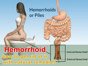 Hemorrhoid and how to get rid of it with natural remedies
