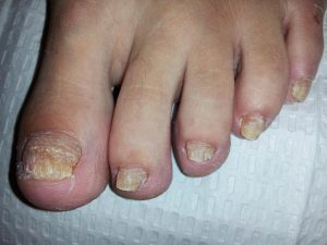 Nail fungus and how to treat it naturally with home remedies