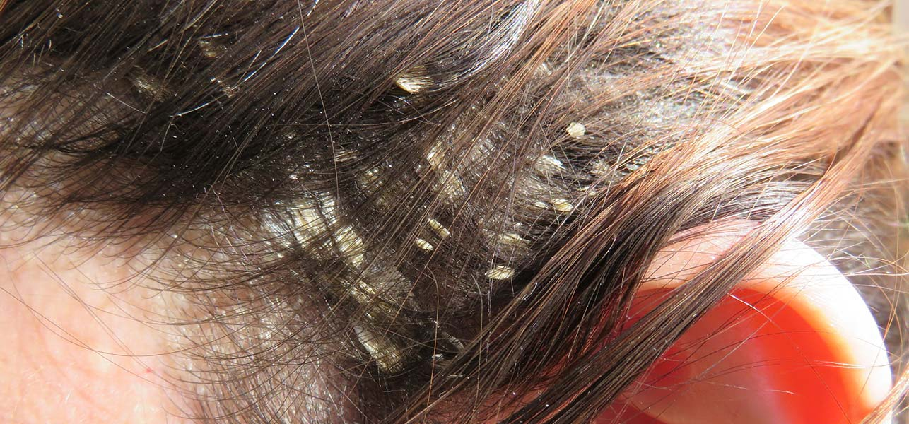 How To Get Rid Of Scalp Dermatitis Naturally
